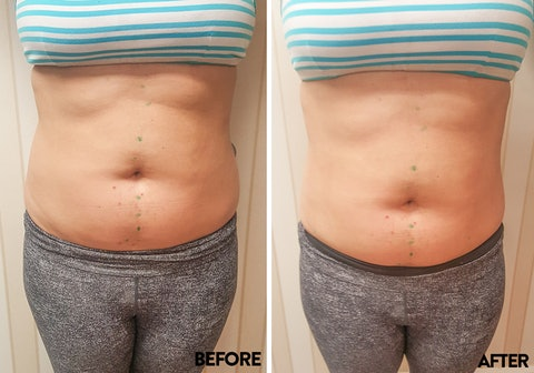 I Tried 10 Minute Laser Lipo And Lost 3 Inches Without