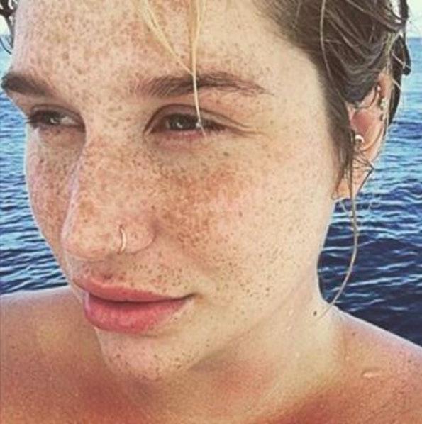 Kesha Posted A No Makeup Selfie And Looks Different - Kesha-no-makeup