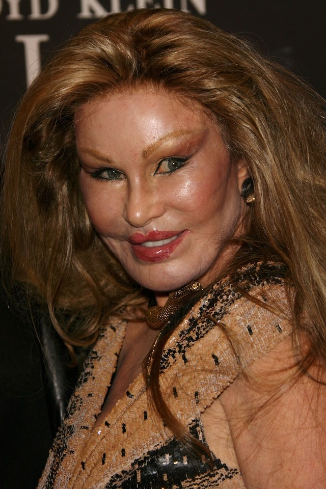 Catwoman Jocelyn Wildenstein Stabbed Bf And Poured Hot