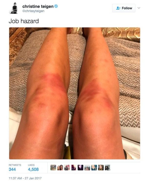 Chrissy Teigen Tweets Bruised Knees Pic Sex Jokes Made