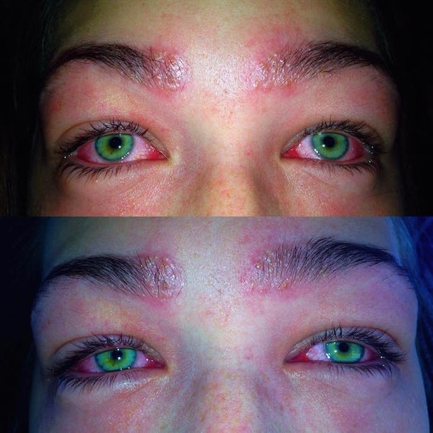 Teen's Side-By-Side Pics Show Reaction To Eyebrow Tint