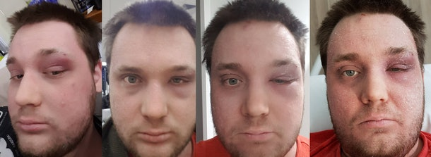 This Guy's Terrifying Story Will Make You Never Want To Pop A Pimple