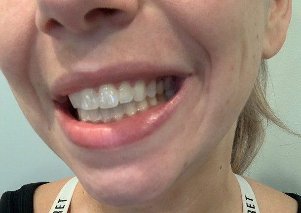 I tried Kendall Jenner's Moon teeth whitening pen, and it didn't cause any sensitivity.