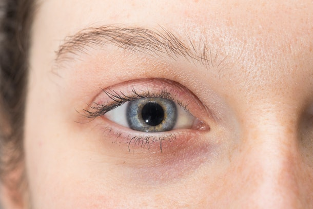 Eye of woman with dilated pupil